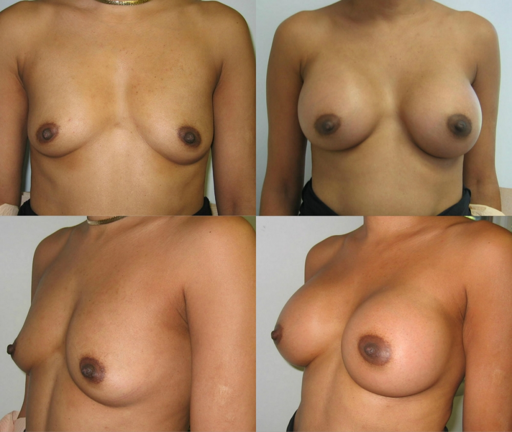 Breast Augmentation, 300 cc gel implants