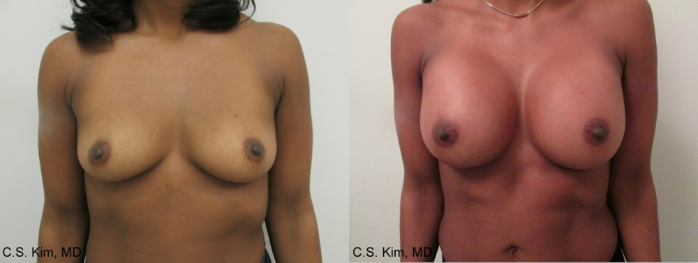 Breast Augmentation Gel Implants, 400cc by Dr. Chang Soo Kim