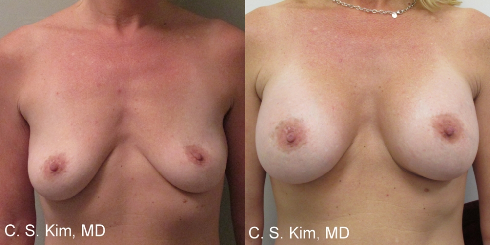 Breast Augmentation Gel Implants, 325cc by Dr. Chang Soo Kim