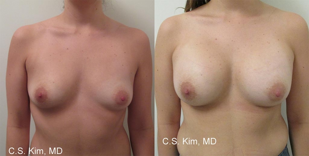 Breast Augmentation Gel Implants, 350cc by Dr. Chang Soo Kim