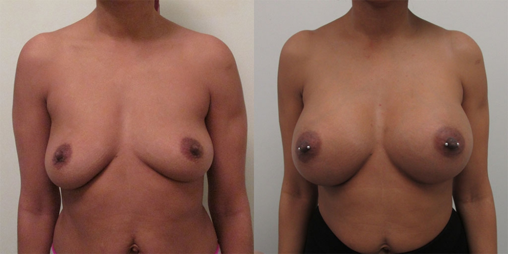 Breast Augmentation Gel Implants, 450cc by Dr. Chang Soo Kim